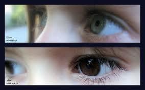 eyes-of-hope